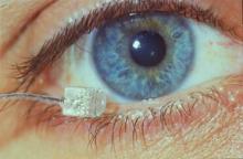 Avances en los implantes de retina con células madre