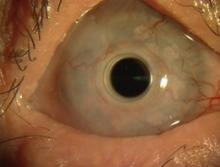 El HUC realiza una variante de implante de córnea artificial que permite devolver visión a una paciente con ceguera corneal